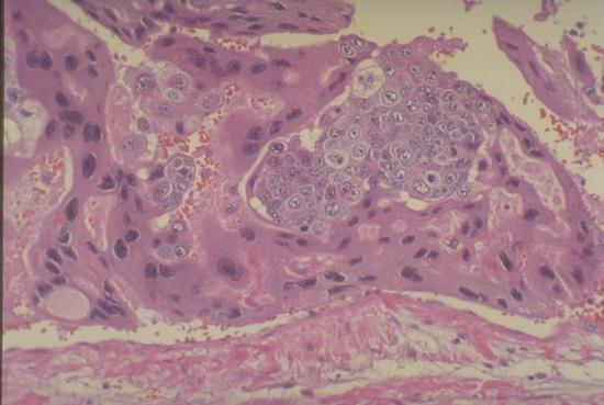 Male Urinary | UW Medicine Pathology