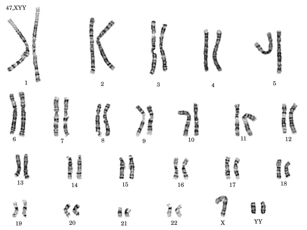 Xyy Syndrome Karyotype Cytogenetics Gallery