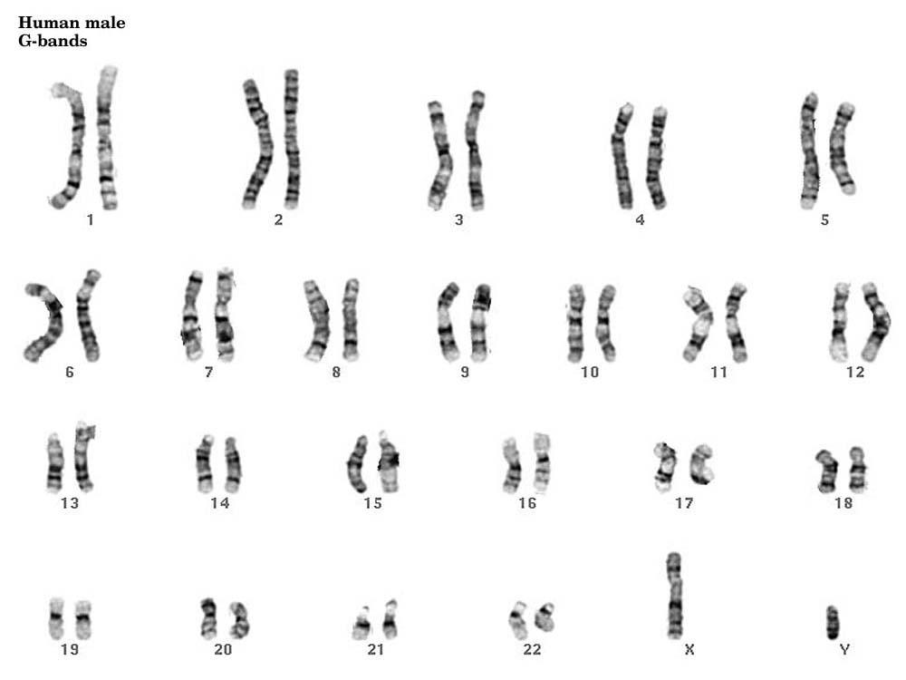 Cytogenetics Gallery – Karyotypes Worksheet